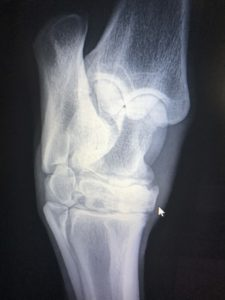 Fused distal inter-tarsal joint